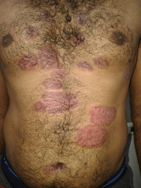 Psoriasis Treatment Bangalore