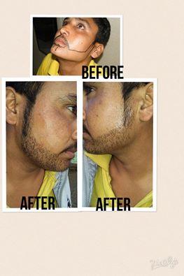 Karam Hair Transplant Centre[ KHTC INDIA]