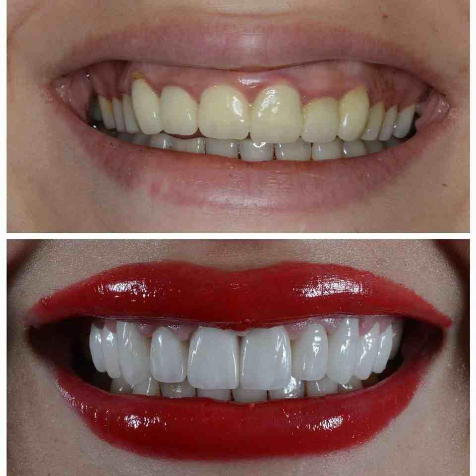 Teeth & More Dental Spa @ +91-9990491199