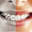Dentist n Dontist