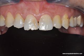 Smayate Dental Clinic
