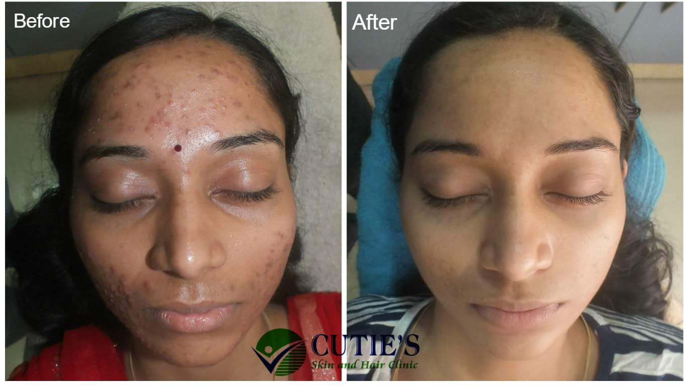 Cutie's Skin and Hair Clinic | a compete solution of your skin, body & hair..