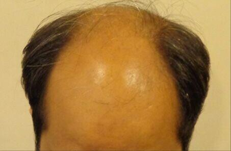 Enhance Clinics - Book a Free Hair Transplant Consult at Celebrity Clinic