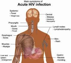 Hiv @ AIDS CLINIC